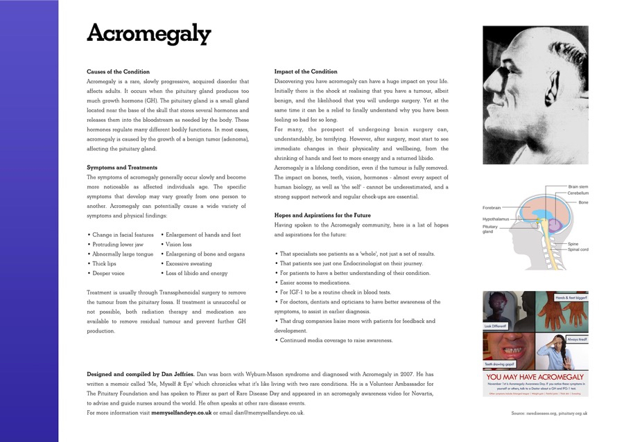 Acromegaly Conditions
